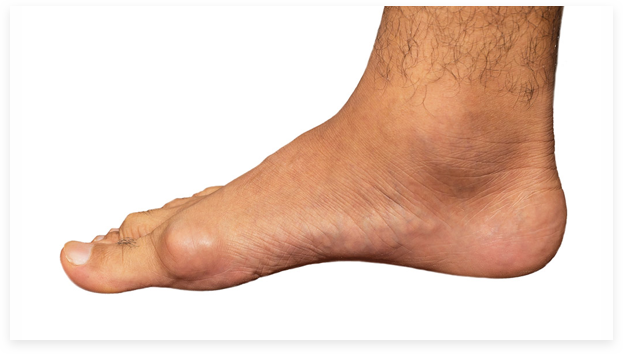 Tophi foot picture